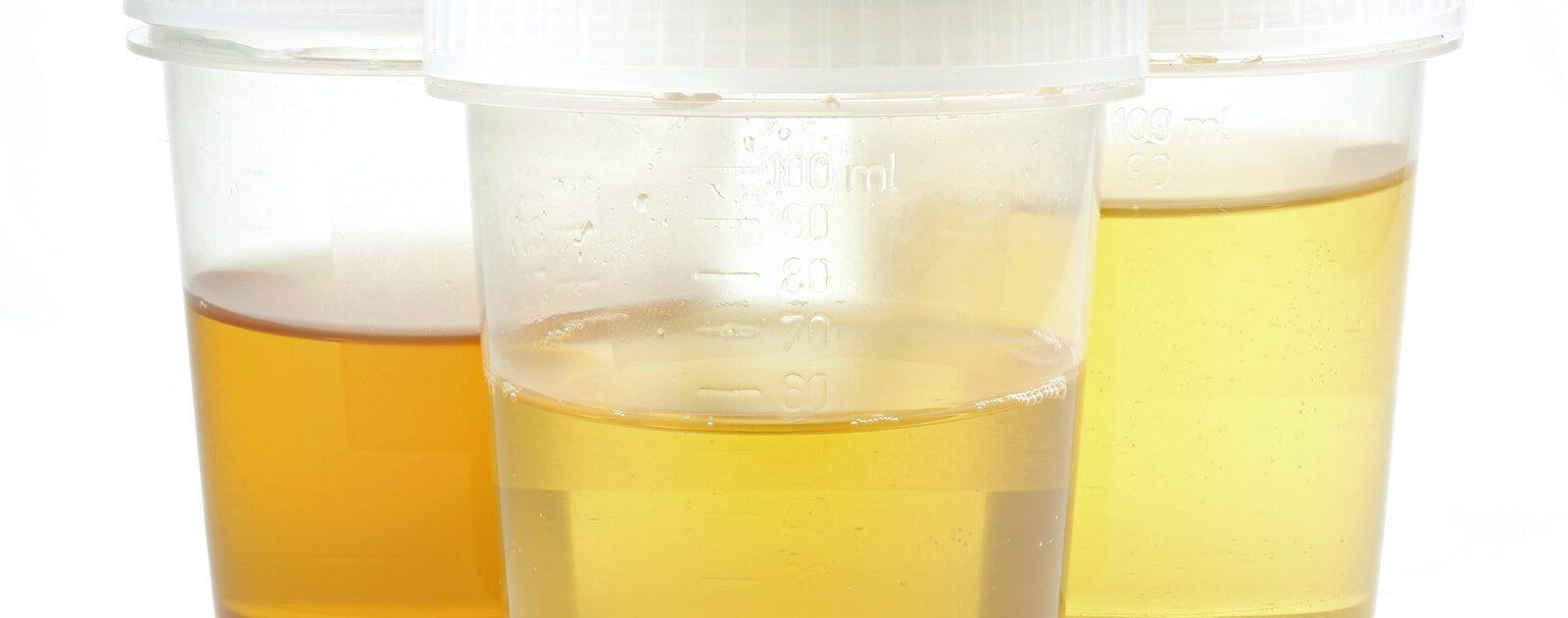 3-Gläser-Probe zur Untersuchung des Urins