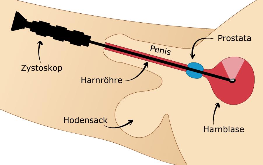 Illustration einer Blasenspiegelung, bei der ein Zystoskop in die Harnröhre eingeführt wird.
