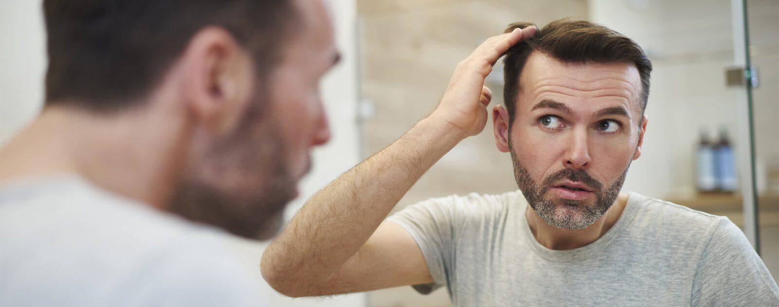 Mann, der im Spiegel seinen Haarausfall betrachtet, der durch die Wechseljahre entstanden ist.