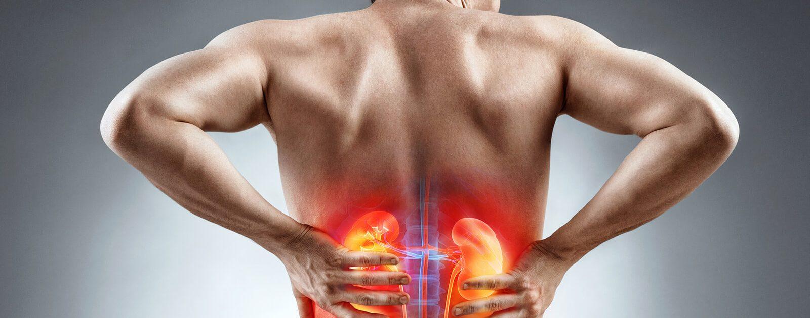 Nierensteine verursachen Schmerzen bei einem Mann