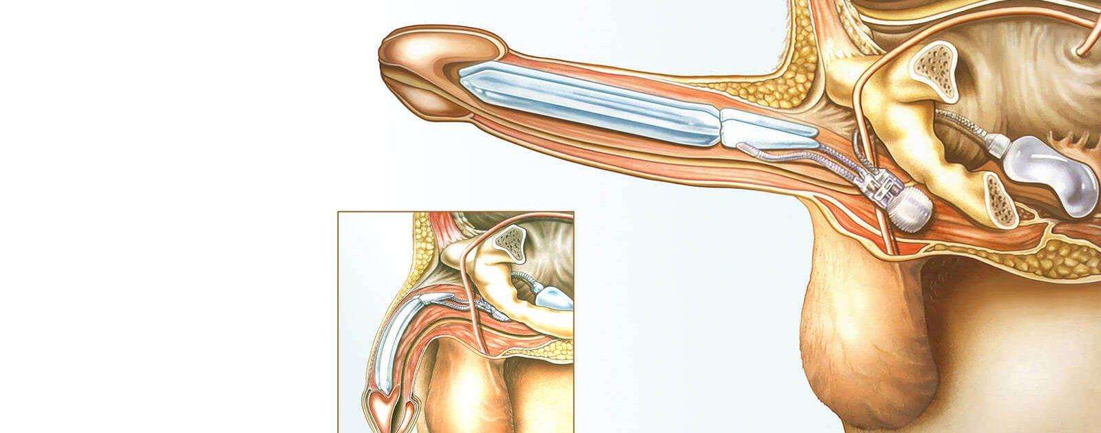 Die Darstellung zeigt, wo sich die implantierte Penisprothese im Körper zur Behandlung von Erektionsstörungen befindet.