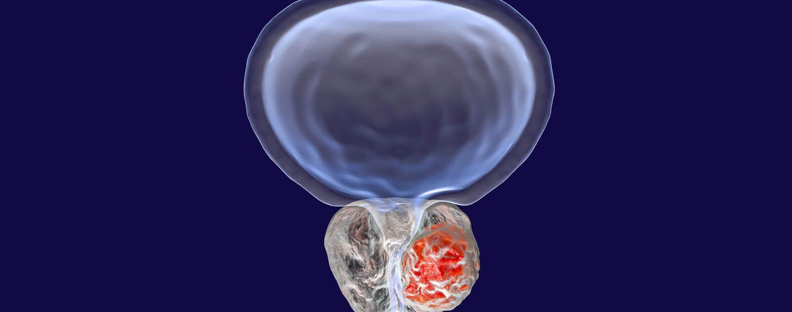 Grafische Darstellung einer vergrößerten Prostata