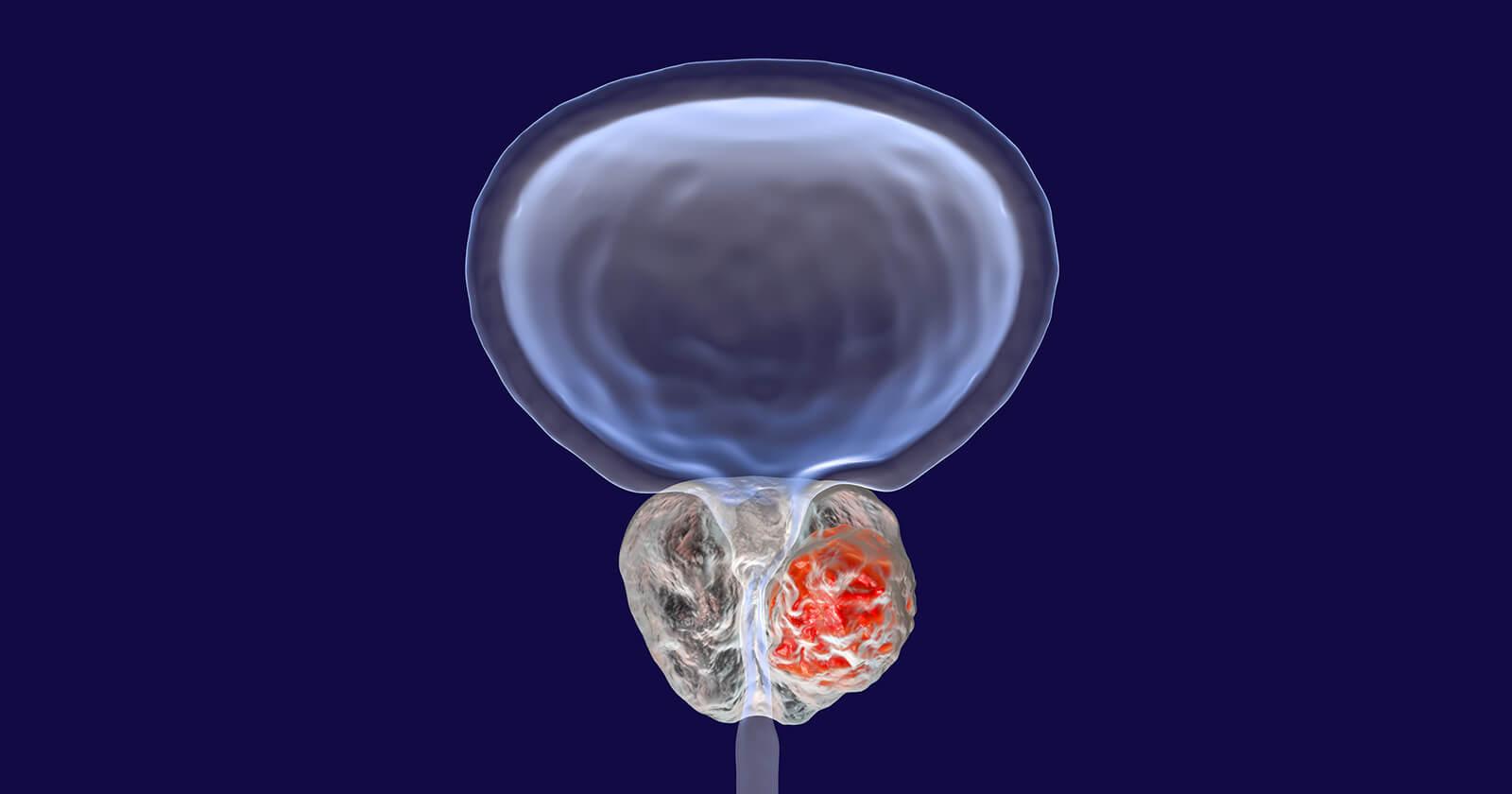 Prostatavergrößerung: Ursachen, Symptome, Behandlung & OP ...