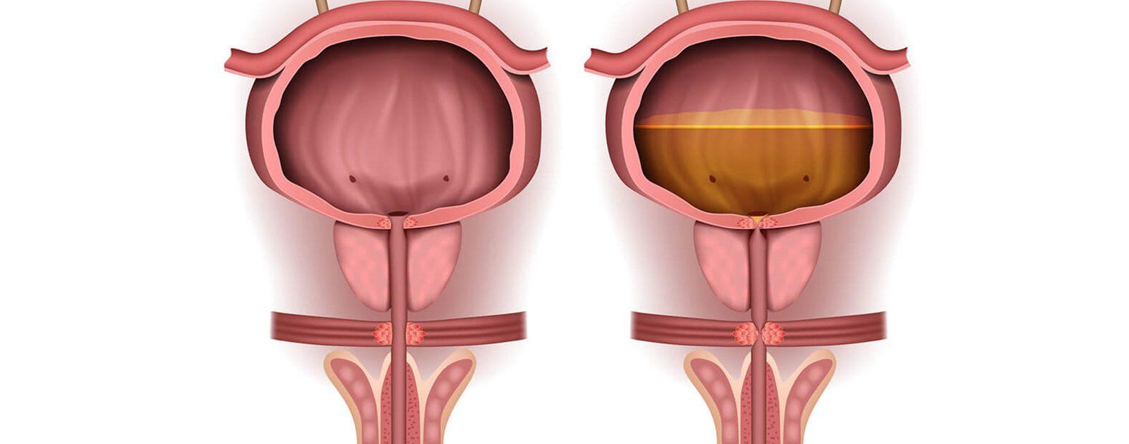 Während die Blase links normal funktioniert, stellt die Blase auf der rechten Seite den Verbleib von Restharn bildlich dar.