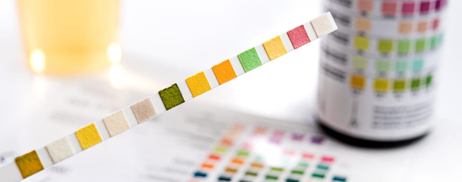 Beim Urintest gleicht der Urologe die Verfärbungen auf den typischen Streifen mit einer Farbskala ab.